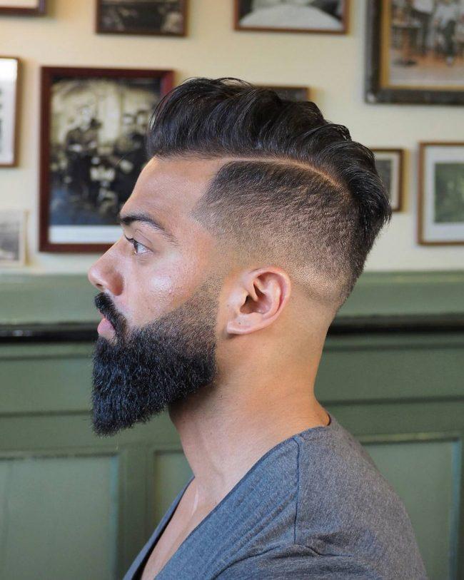 Receding Hairline 31