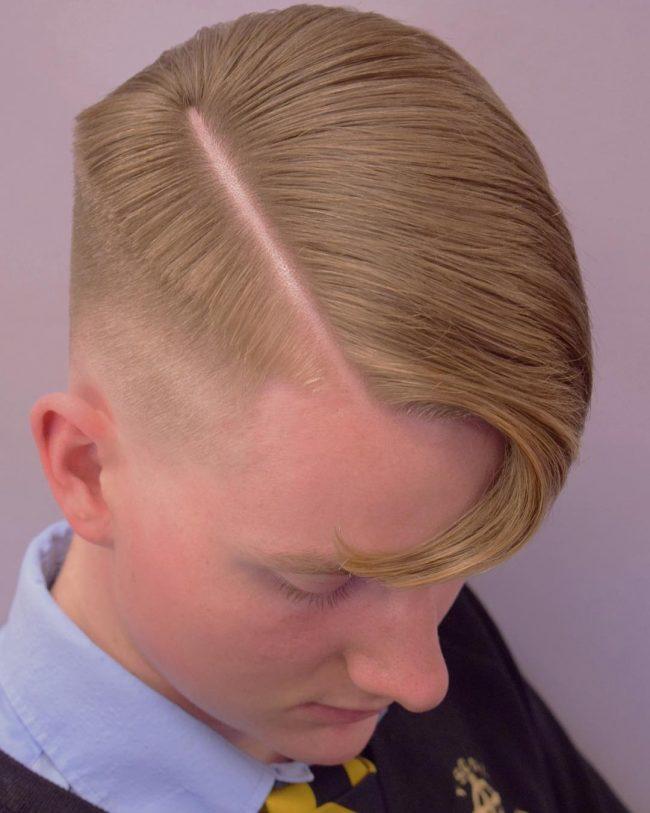 Receding Hairline 34
