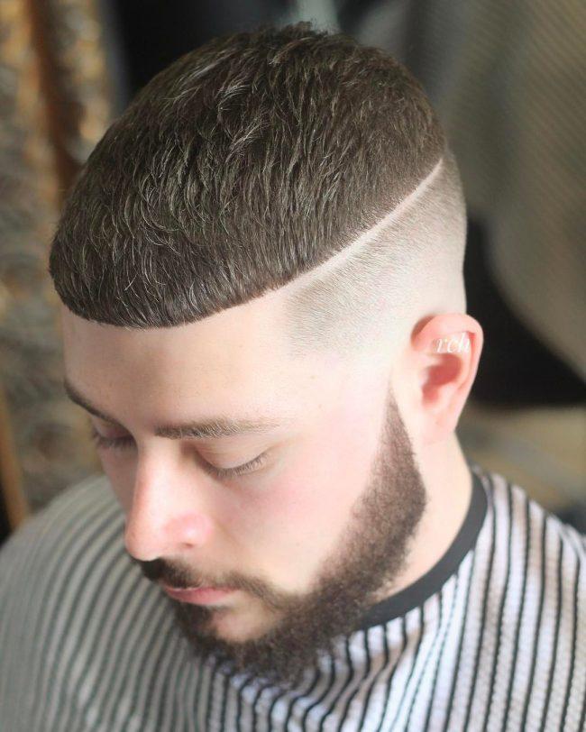 Receding Hairline 43