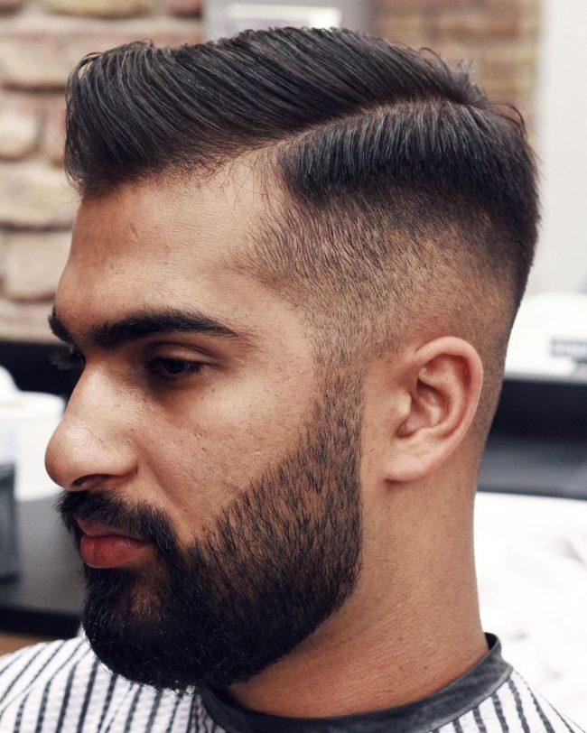Receding Hairline 57